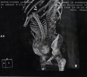 fet röntgen
